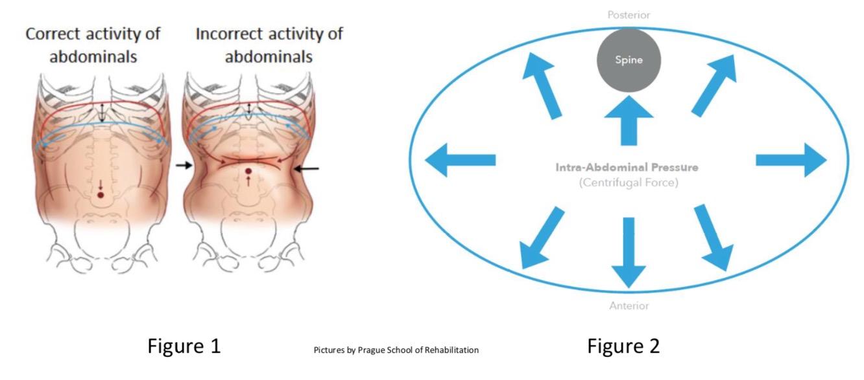 Vnútrobrušný tlak pri stabilizácií chrbtice