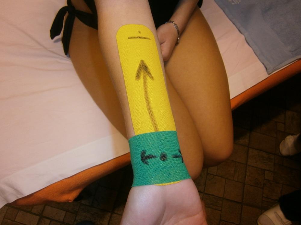 Manuálna terapia bolestivých lokálnych stavov - kurz pre fyzioterapeutov